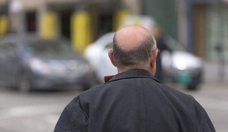 Hair Loss Myths: Are These 5 Common Hair Beliefs True Or False?
